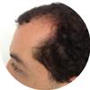 Alopecia-androgenetica-2