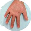 dermatitis-de-contacto2