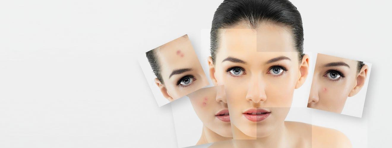 Doctora Elsa Victoria Hoyos / Dermatóloga | Dermatólogo Bogotá